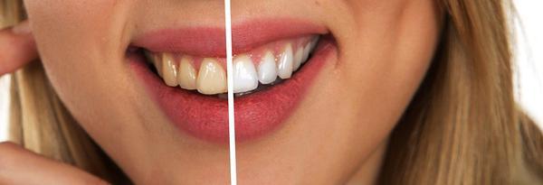 zabieg wybielania zębów chorzów